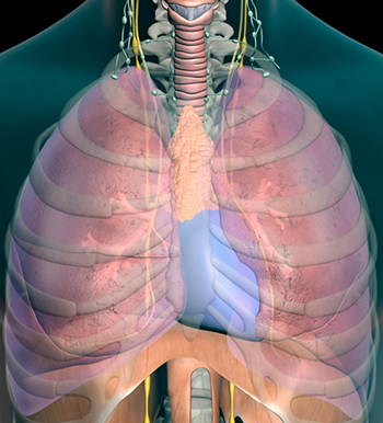 Lung Cancer Treatment with Video Assisted Thoracic Surgery (VATS)
